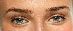 Подъем латерального угла глаза