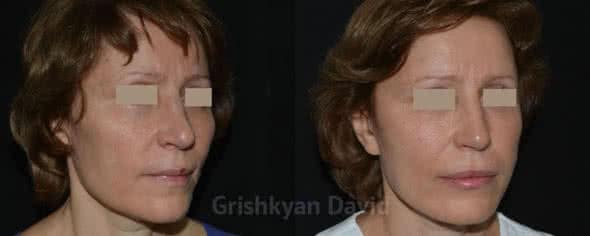 Липофилинг лица – фото до и после
