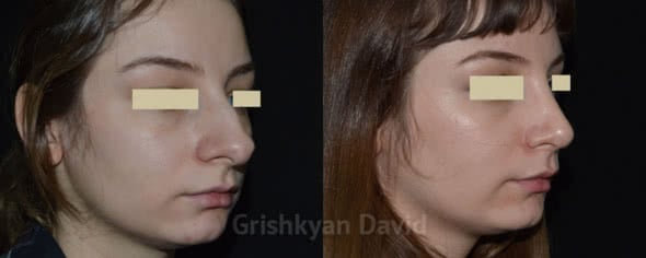 Ринопластика – фото до и после