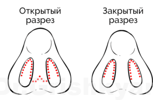 Ринопластика в Москве