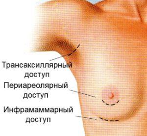 Протезирование груди в Москве