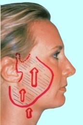 Доктор Гришкян - новейшие методики пластики лица