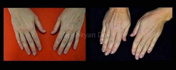 Липофилинг рук – фото до и после