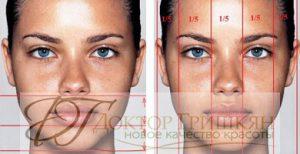 3-D омоложение лица