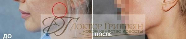 3-D омоложение лица фото до и после