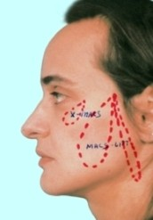 Доктор Гришкян - новейшие методики пластики лица 2