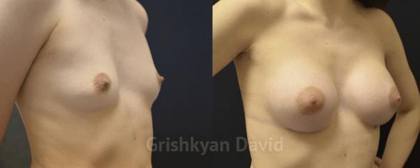 Увеличение груди – фото до и после