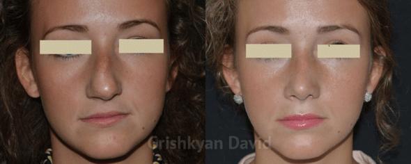 ДО и ПОСЛЕ ринопластики носа фото 1