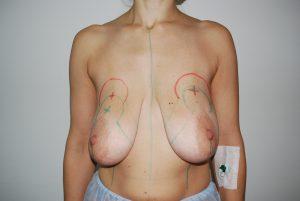 уменьшение молочных желез фото 1