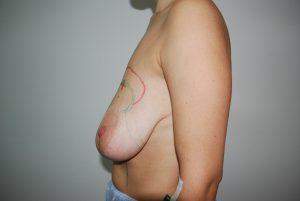 редукционная маммопластика фото
