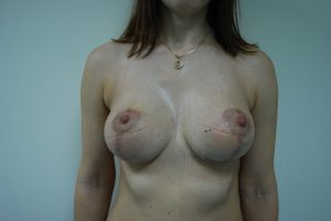 редукция молочной железы фото