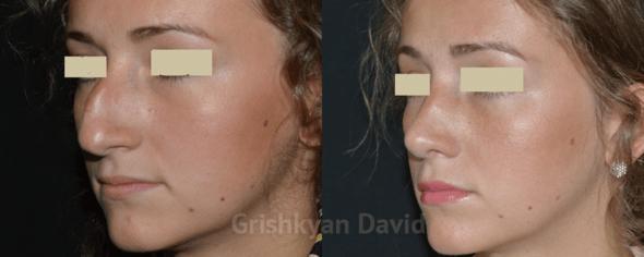 ДО и ПОСЛЕ ринопластики носа фото 2