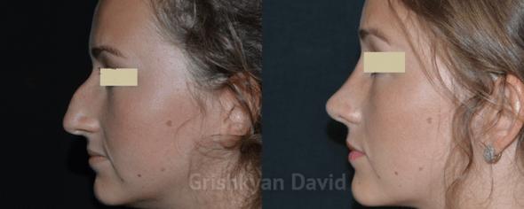 ДО и ПОСЛЕ ринопластики носа фото 3