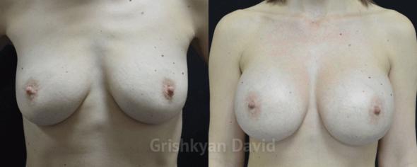 Фото Увеличение груди – фото до и после