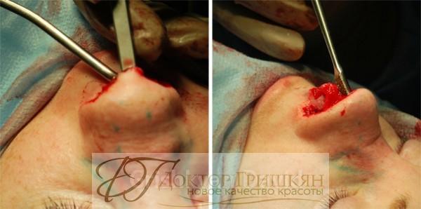 Формирование костного хрящевого отдела спинки носа