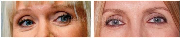Фото до и после жиросохраняющей блефаропластики
