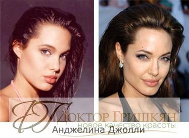 Фото звездной операции Анджелины Джоли до и после операции