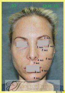 Фото до и после липофилинга лица