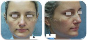 Фото до моделирования лица липофилингом