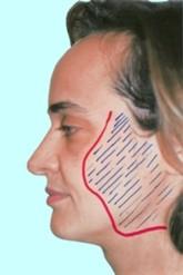 Доктор Гришкян - новейшие методики пластики лица 4