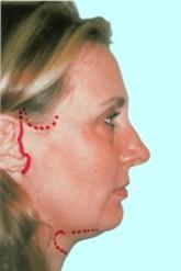 Доктор Гришкян - новейшие методики пластики лица 3
