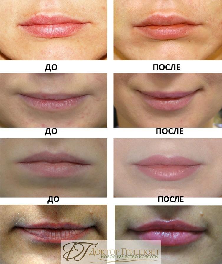 Липофилинг губ Москва фото до и после