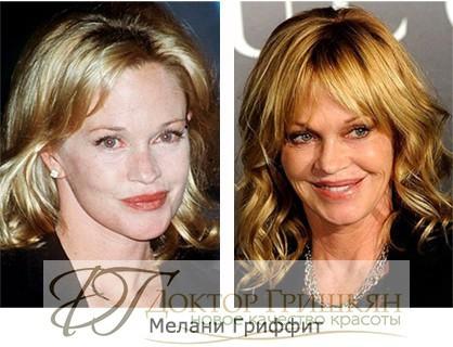 Фото звездной операции Мелани Гриффит до и после операции