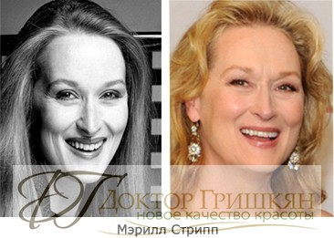 Фото звездной операции Мэрилл Стрип до и после операции