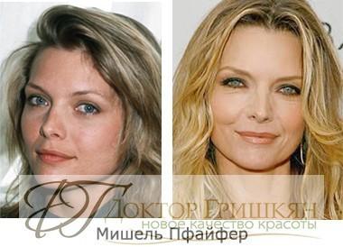 Фото звездной операции Мишель Пфайфер до и после операции