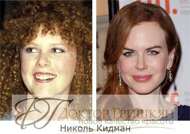 Фото звездной операции Николь Кидман до и после операции