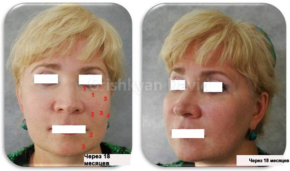 Фото до липофилинга средней и нижней зон лица