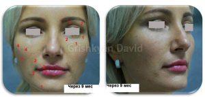 Фото после моделирования лица липофилингом