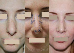 Фотографии пациентки до и после третей по счету ринопластики