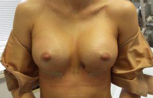 фото после пластики груди через неделю после операции