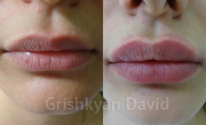 увеличить губы гелем фото 1