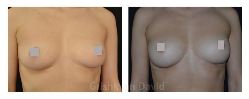 Увеличение груди собственным жиром фото до и после операции