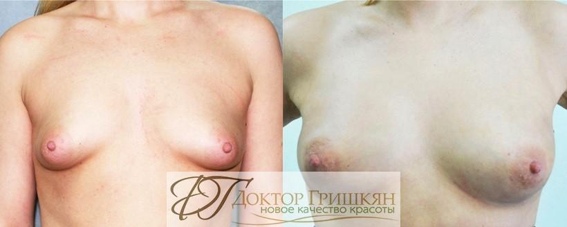 Липофилинг груди фото до и после
