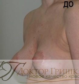 Липофилинг груди с применением наружных грудных экспандеров фото до и после