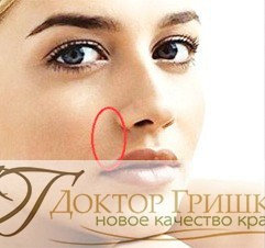 Липофилинг носогубных складок