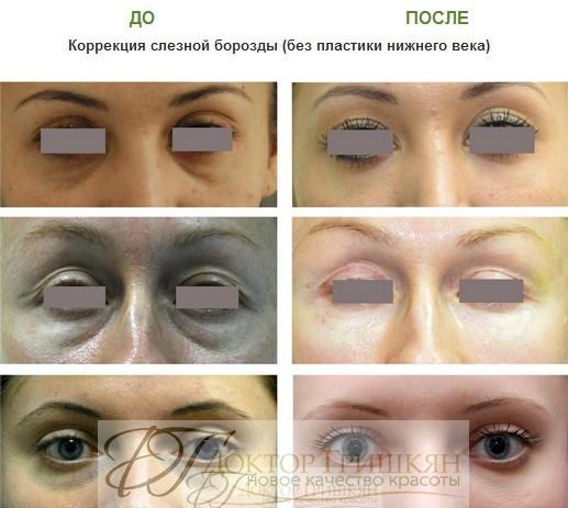 Липофилинг слёзной борозды фото до и после