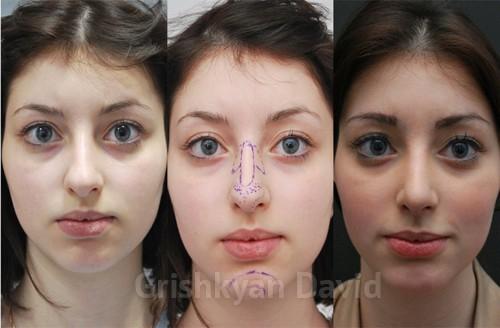 Лучший пластический хирург по ринопластике по версии журнала «ELLE» фото до и после