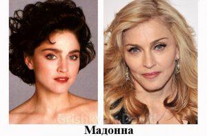 Пластические операции Мадонна