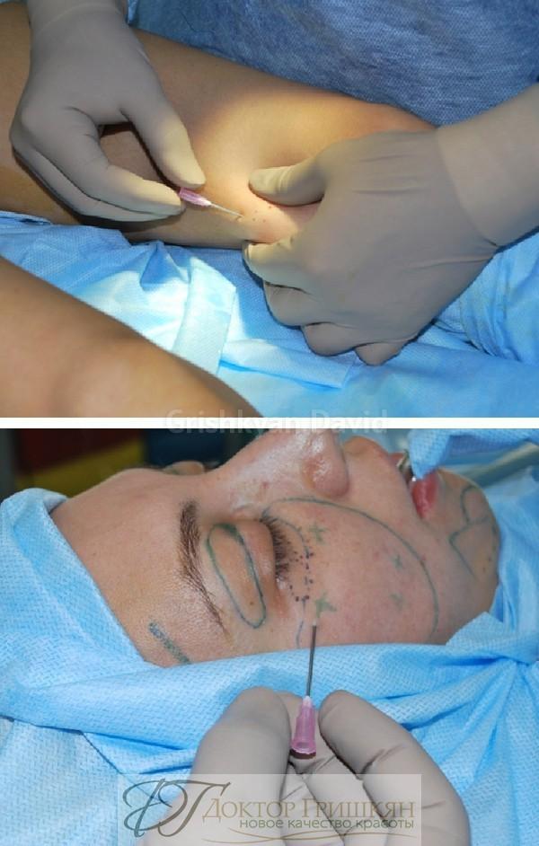 Микроотверстия без разреза кожи скальпелем