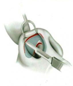 Доктор Гришкян Оперативные доступы в ринопластике.