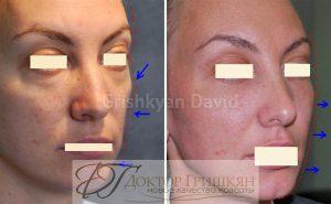Пациентка до и после операции