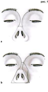 Доктор Гришкян - пластика носа Трансплантация