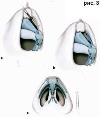 Доктор Гришкян - пластика носа Трансплантация фото 3