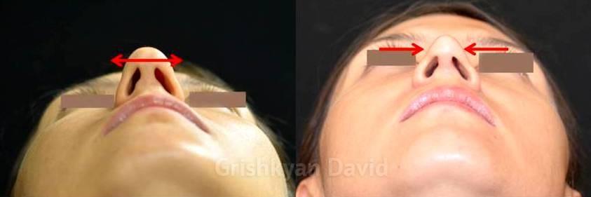 Сужение кончика носа