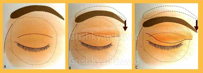 Верхняя блефаропластика фото до и после 4
