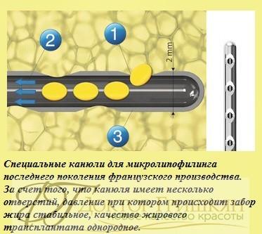 Специальные канюли для микролипофилинга